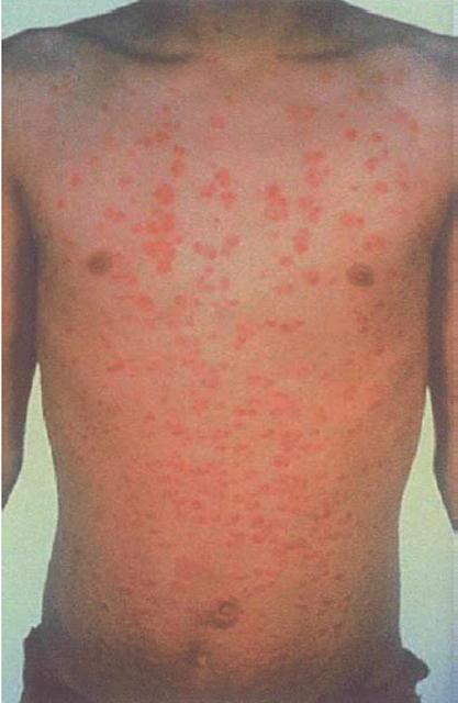 Eczema che sopporta un trattamento di fotografia della ragione di medicina su trattamento
